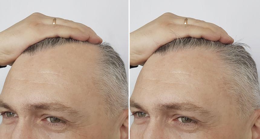 zabieg na porost włosów dla mężczyzn